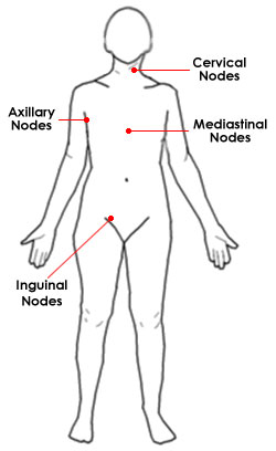 Lymph node locations thelymphnodes img lymph nodes location ccuart Image collections