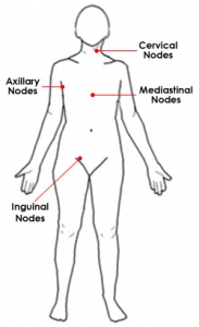 img: lymph-nodes-location
